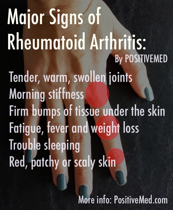 The Symptoms of Rheumatoid Arthritis -  Are you experiencing stiffness and pain in your joints? This can be due to rheumatoid arthritis. Read on to find out how to identify the symptoms of rheumatoid arthritis and the treatments.