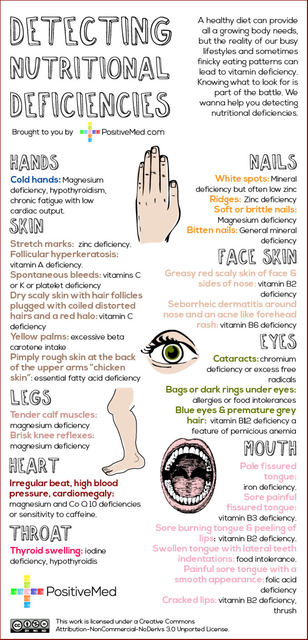 detecting-nutritional-deficienciesWEB