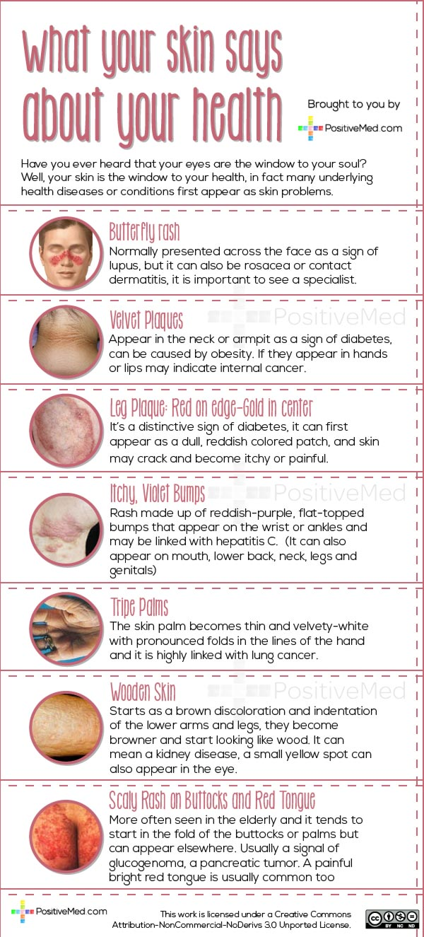 what your skin tells about your health