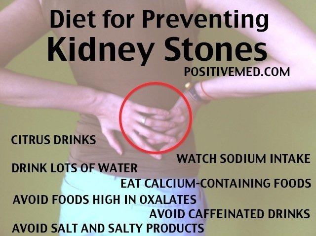 DIET FOR PREVENTING KIDNEY STONES