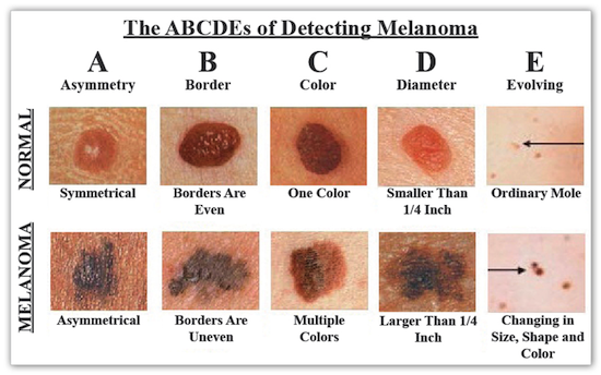 signs-of-skin-cancer