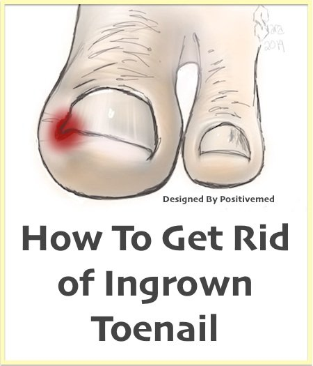 Natural Home Remedy For Ingrown Toenails Ultima Blog