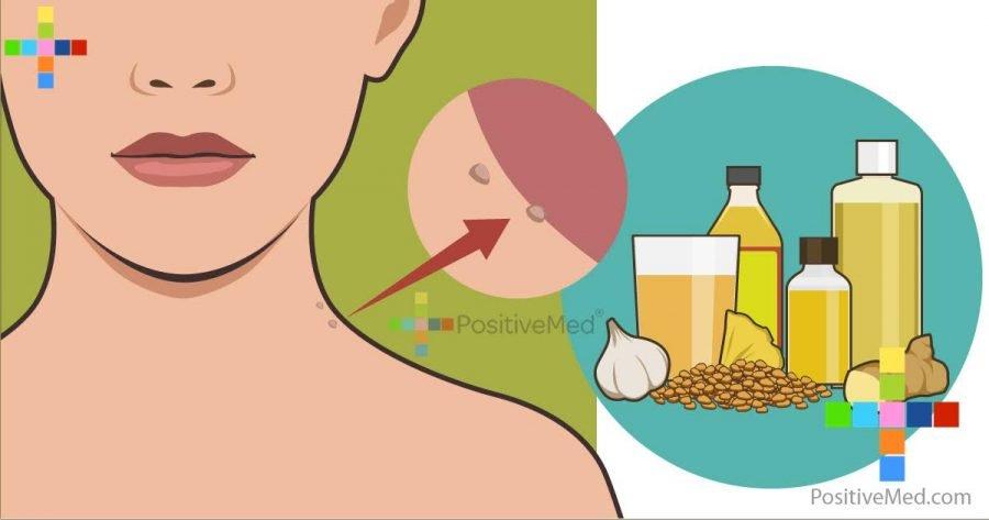 skin-tags-natural-treatments