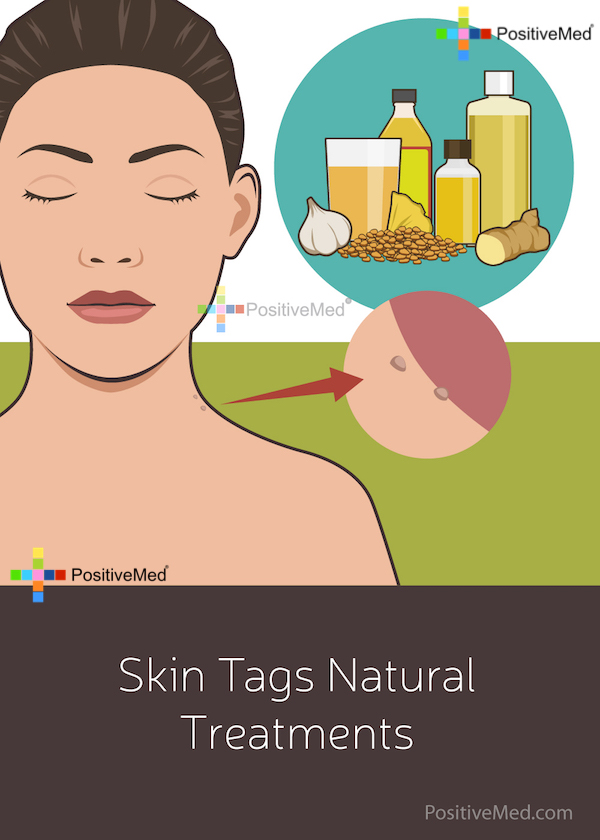 Skin Tags Natural Treatments
