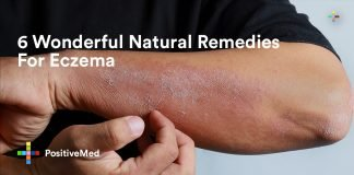 6 Wonderful Natural Remedies For Eczema.