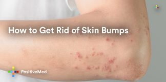 How to Get Rid of Skin Bumps