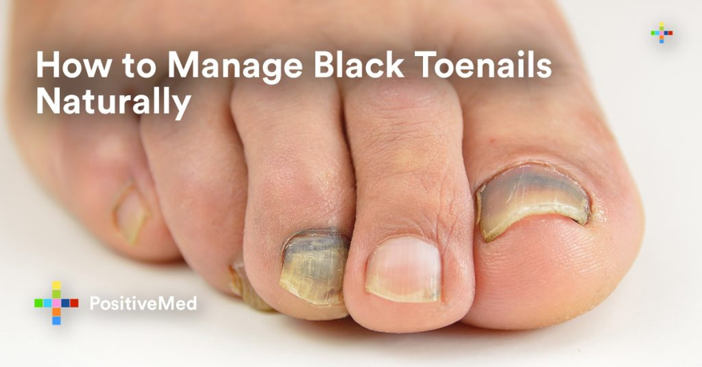 How to Manage Black Toenails Naturally.