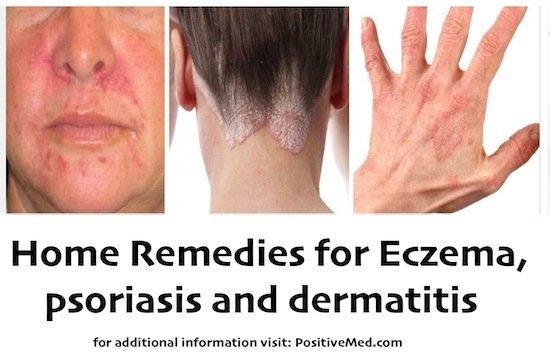 dermatitis home remedies