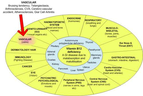 What You Should Know About Vitamin B12 and Warning Signs ... B12 Deficiency Skin