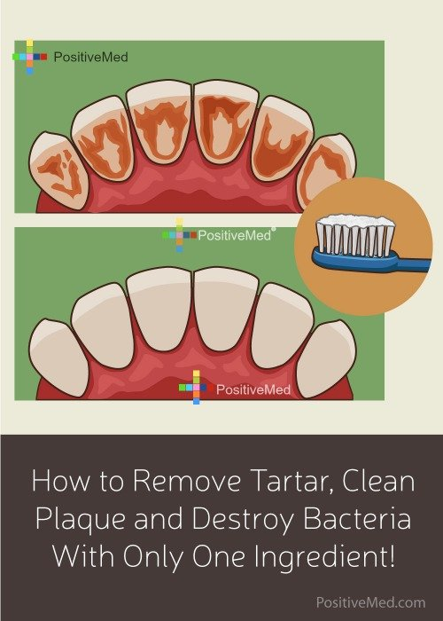 How to Remove Tartar, Clean Plaque and Destroy Bacteria With Only One Ingredient!