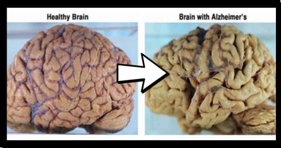 Natural Remedies For Alzheimer S