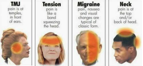 11 Migraine Triggers That Will Surprise You