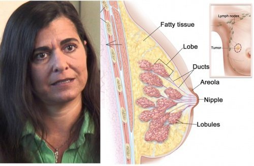 How This Woman Cured Her Breast Cancer