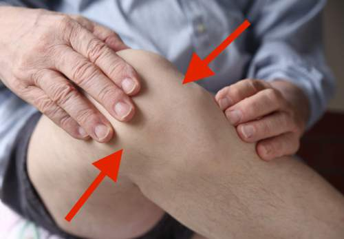 If Your Joints Hurt When It Rains, This Is The Reason
