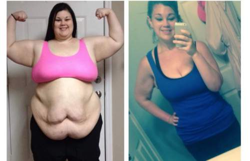She Weighed Over 400 Pounds! It Took Her 15 Month To Look Like She Looks Now
