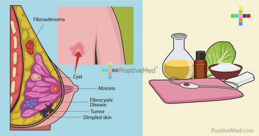 6-natural-remedies-to-get-rid-of-breast-cysts