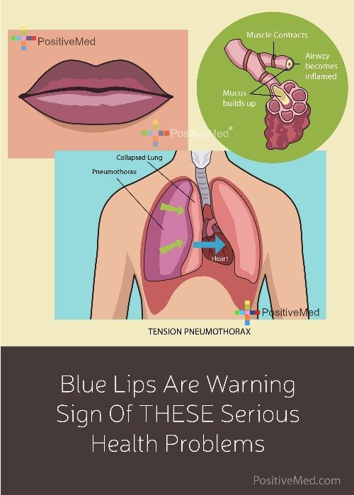 Blue Lips Are Warning Sign Of THESE Serious Health Problems