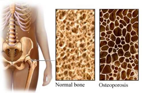 Dairy Destroys Your Bones