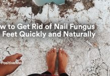 How to Get Rid of NAIL FUNGUS On Feet Quickly and Naturally