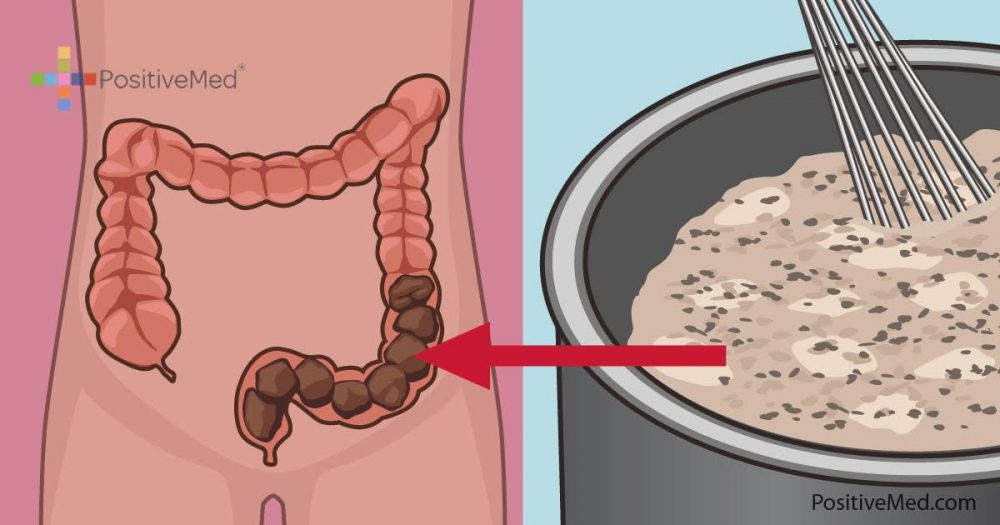 Homemade Colon Cleanse That Will Clean Your Colon Of Toxic