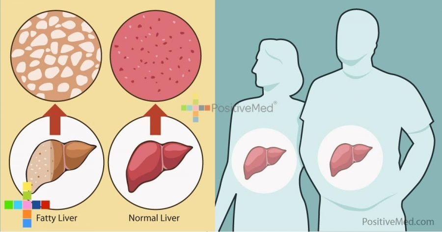 many-people-unknowingly-have-non-alcoholic-fatty-liver-disease-are-you-one-of-them
