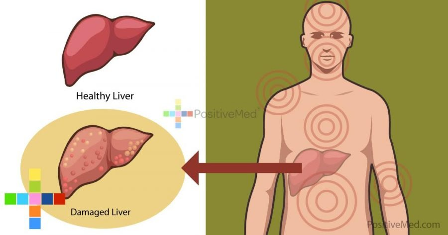 12-body-signals-about-liver-damage