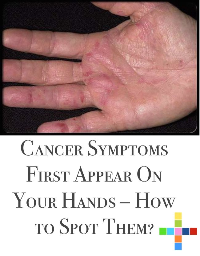 Cancer Symptoms First Appear On Your Hands – How to Spot Them?