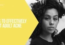 Ways To Effectively Treat Adult Acne