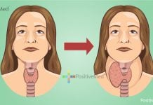 These 2 Iodine Rich Foods Destroy Your Thyroid from the Inside