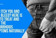 They Itch You And They Bleed Here Is How to Treat and Heal the Hemorrhoids Symptoms Naturally