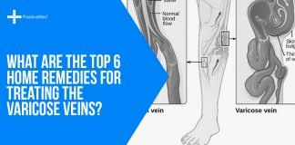 What are the Top 6 Home Remedies for Treating the Varicose Veins