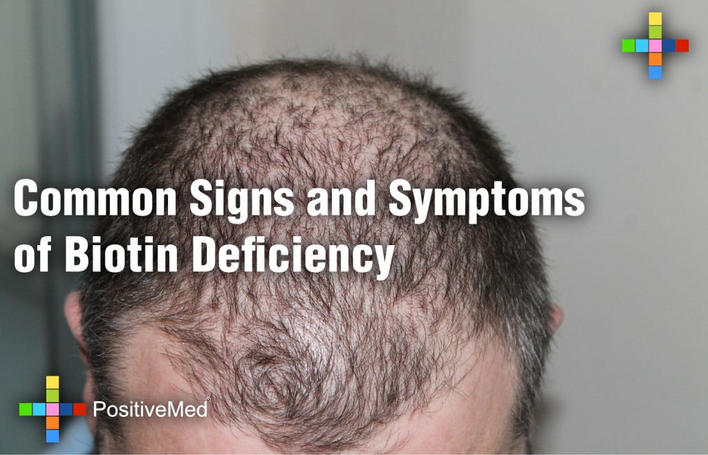 Common Signs and Symptoms of Biotin Deficiency