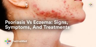 Psoriasis Vs Eczema Signs, Symptoms, And Treatments