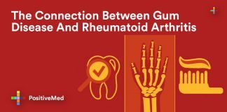 The Connection Between Gum Disease And Rheumatoid Arthritis