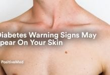 8 Diabetes Warning Signs May Appear On Your Skin