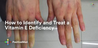 How to Identify and Treat a Vitamin E Deficiency (1)