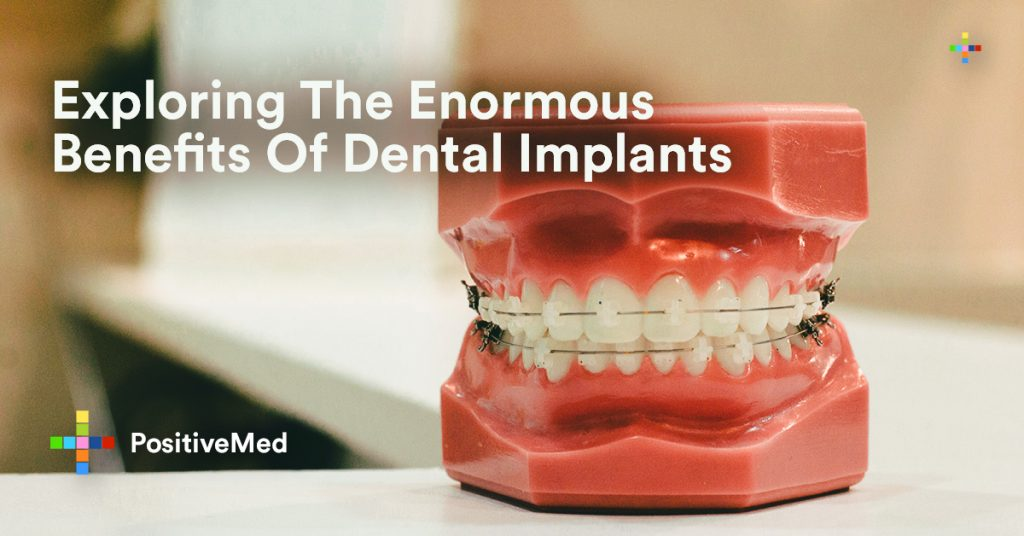 Exploring The Enormous Benefits of Dental Implants.