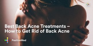 Best Back Acne Treatments - How to Get Rid of Back Acne