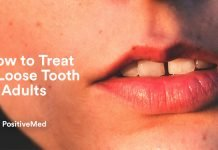 How to Treat a Loose Tooth in Adults