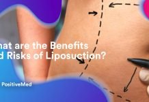What are the Benefits and Risks of Liposuction