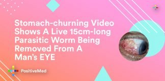 Stomach-churning Video Shows A Live 15cm-long Parasitic Worm Being Removed From A Man's EYE