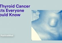 15 Thyroid Cancer Facts Everyone Should Know
