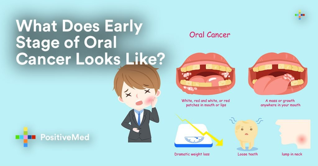 What Do Early Stages of Oral Cancer Look Like? - PositiveMedEarly Oral Cancer Lesions
