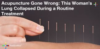 Acupuncture Complications: This Woman's Lung Collapsed After Routine Treatment