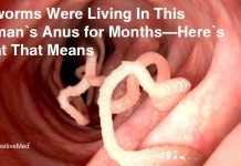 Pinworms-Were-Living-In-This-Woman's-Anus-for-Months-Here's-What-That-Means