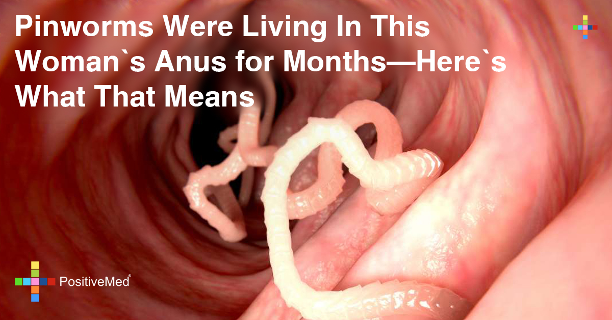 Pinworms Were Living In This Woman's Anus for Months: What It Means