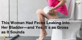 This-Woman-Had-Feces-Leaking-Into-Her-Bladder-and-Yes-It's-as-Gross-as-It-Sounds