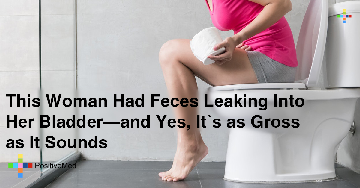 This Woman Had Feces Leaking Into Her Bladder—and Yes, It's as Gross as It Sounds