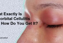 What-Exactly-Is-Periorbital-Cellulitis—and-How-Do-You-Get-It