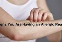 12 Signs You Are Having an Allergic Reaction
